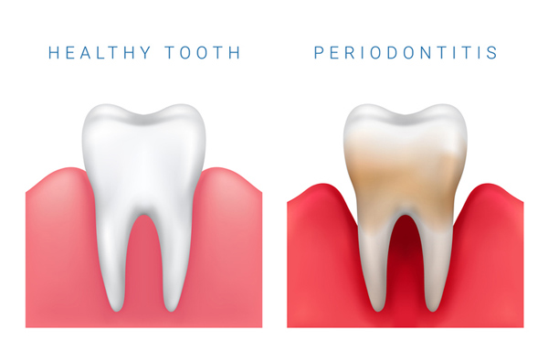 Side by side illustration of a healthy tooth and a tooth with periodontitis