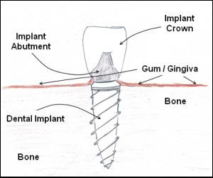 Dentist Bellevue WA - Beauty Benefits of Dental Implants
